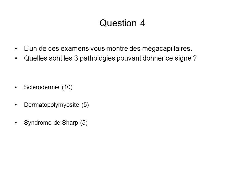 Question 4 L'un de ces examens vous montre des mégacapillaires.
