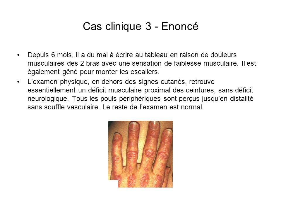 Cas clinique 3 - Enoncé