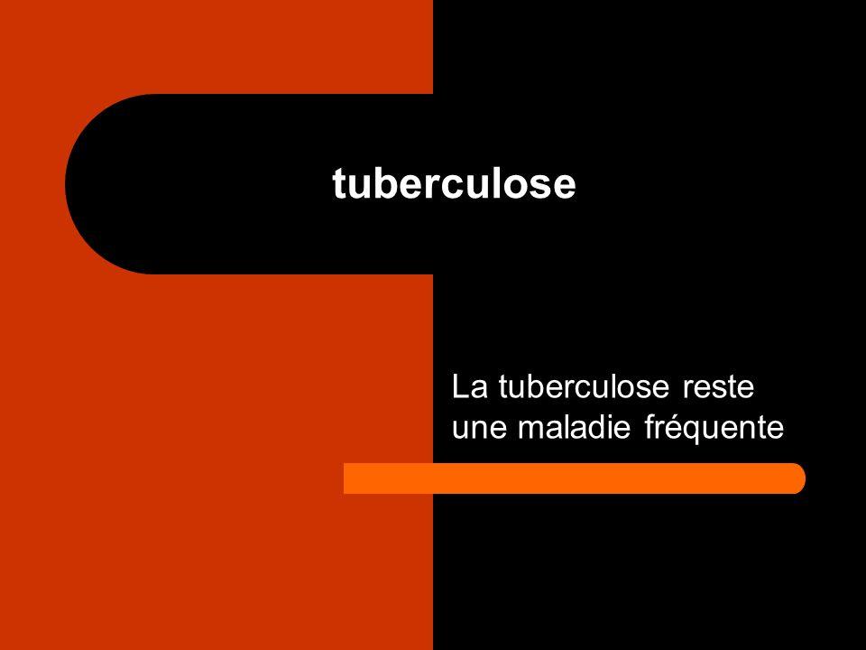 La tuberculose reste une maladie fréquente