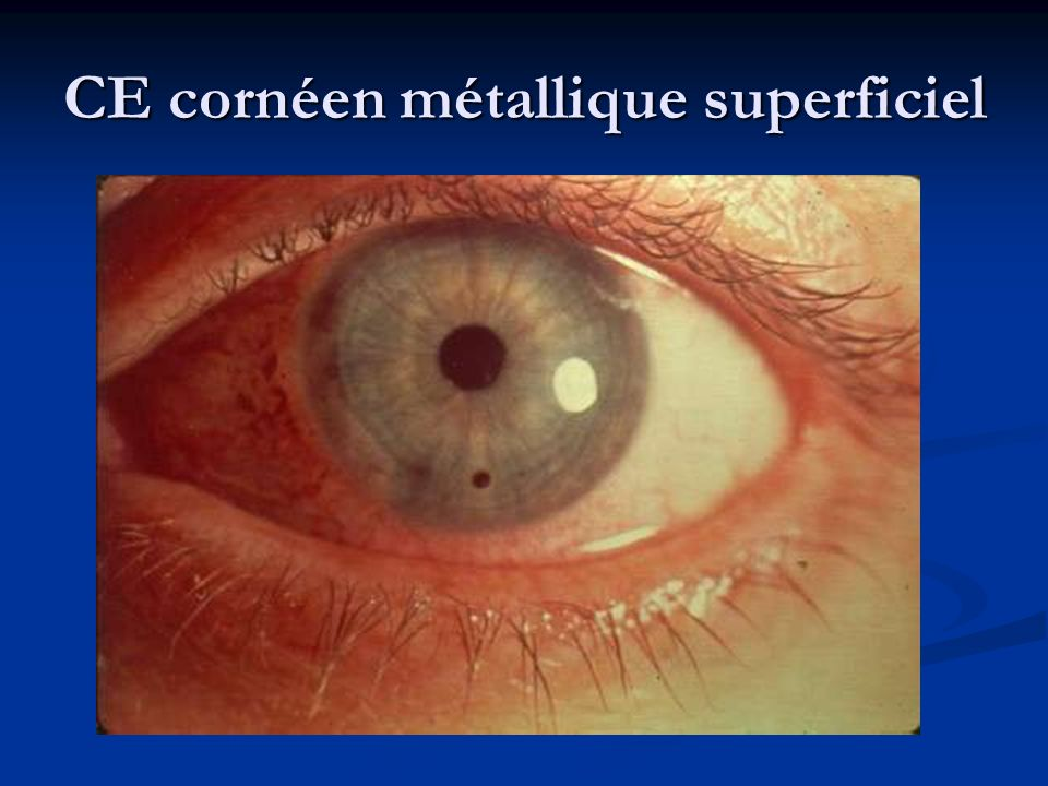 CE cornéen métallique superficiel