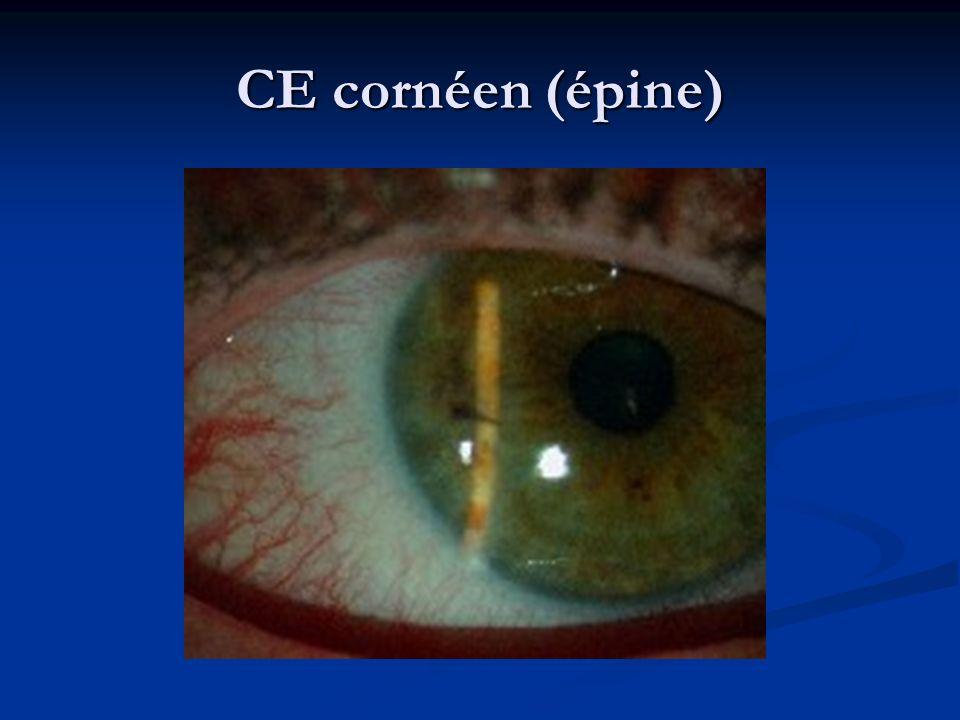 CE cornéen (épine)
