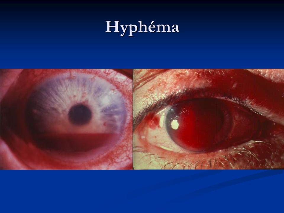 Hyphéma