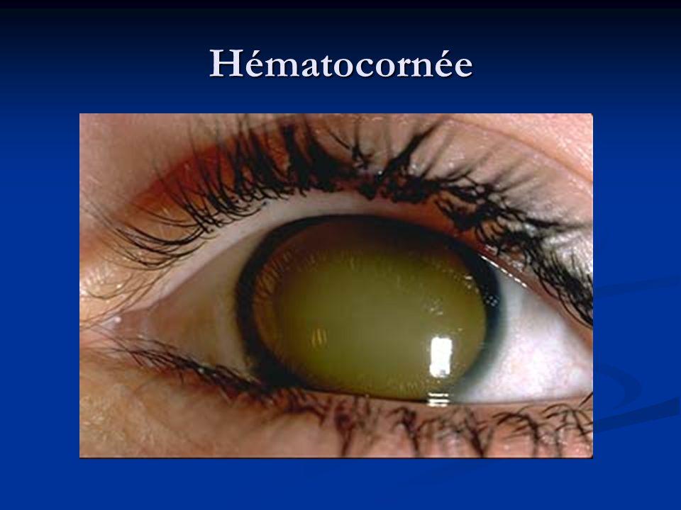 Hématocornée