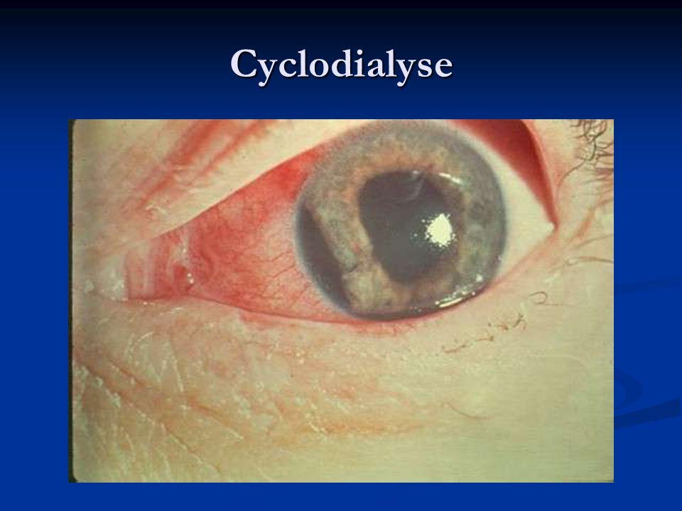 Cyclodialyse