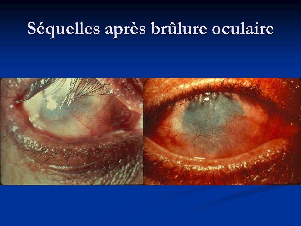 Séquelles après brûlure oculaire