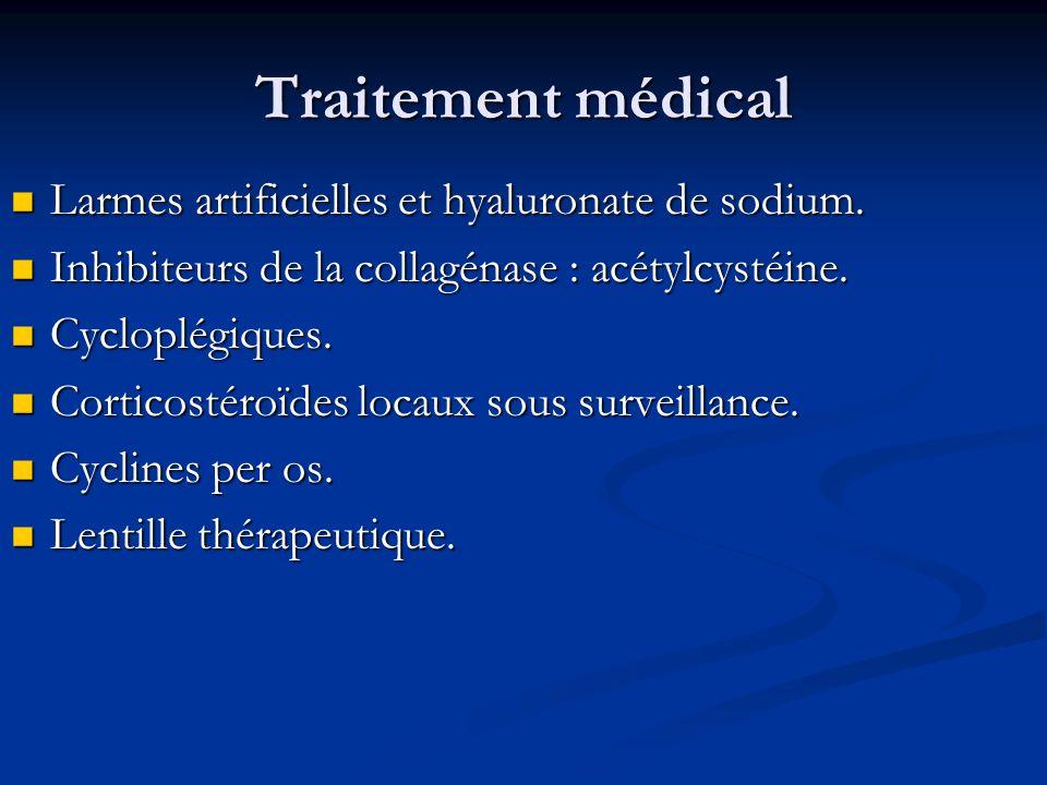 Traitement médical Larmes artificielles et hyaluronate de sodium.