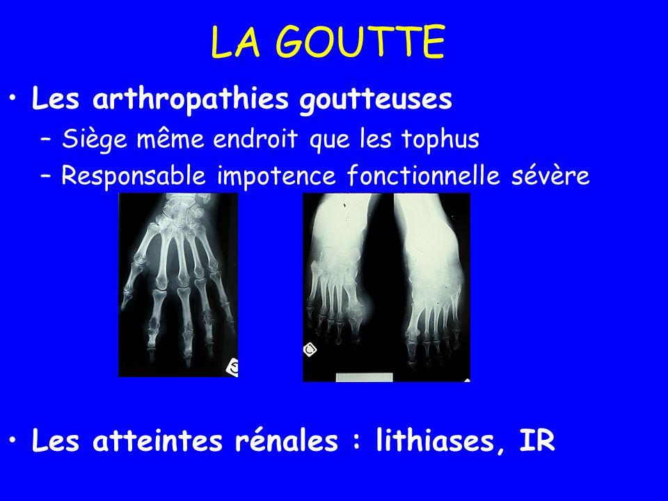 LA GOUTTE Les arthropathies goutteuses