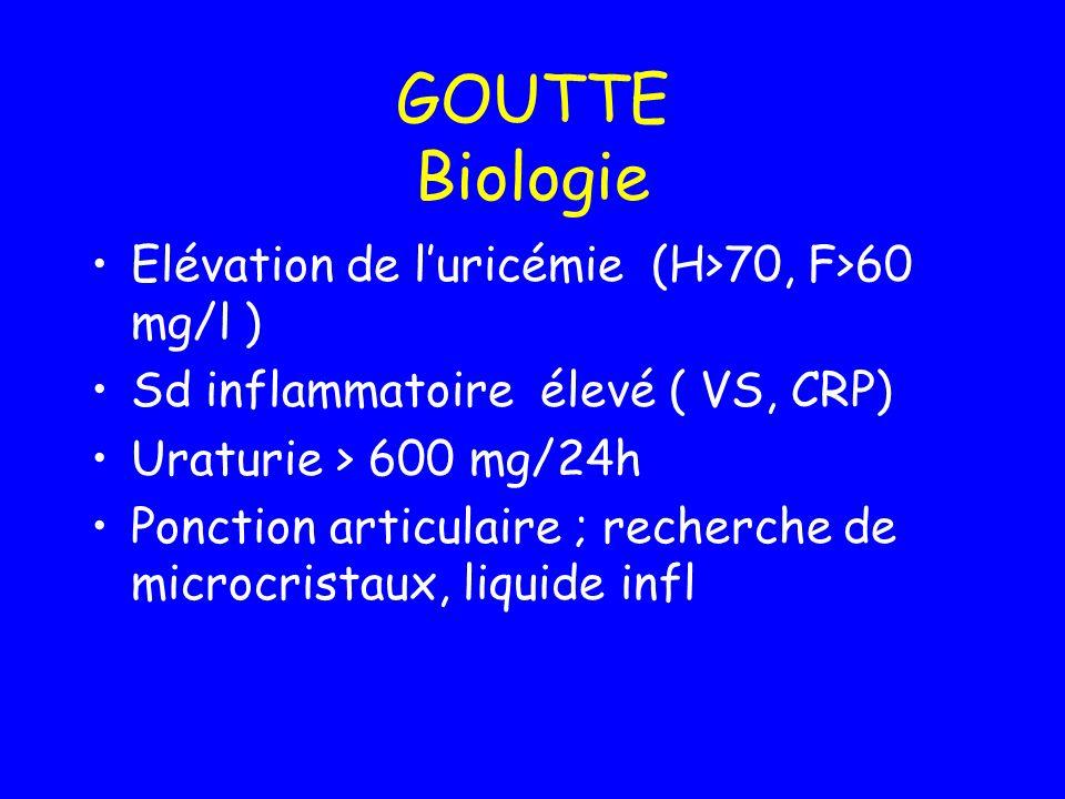 GOUTTE Biologie Elévation de l'uricémie (H>70, F>60 mg/l )