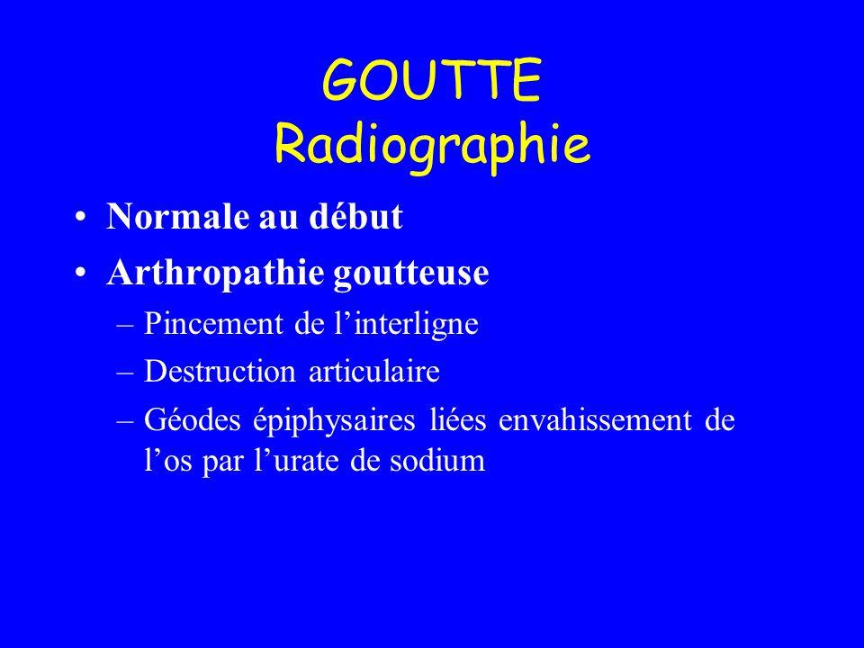 GOUTTE Radiographie Normale au début Arthropathie goutteuse