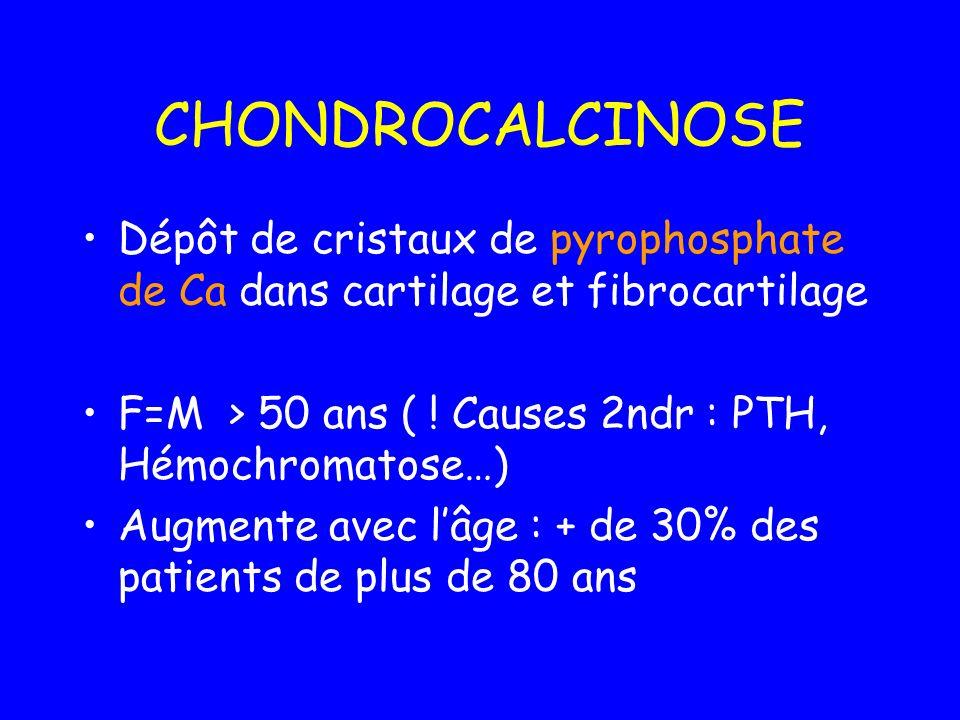 CHONDROCALCINOSEDépôt de cristaux de pyrophosphate de Ca dans cartilage et fibrocartilage. F=M > 50 ans ( ! Causes 2ndr : PTH, Hémochromatose…)