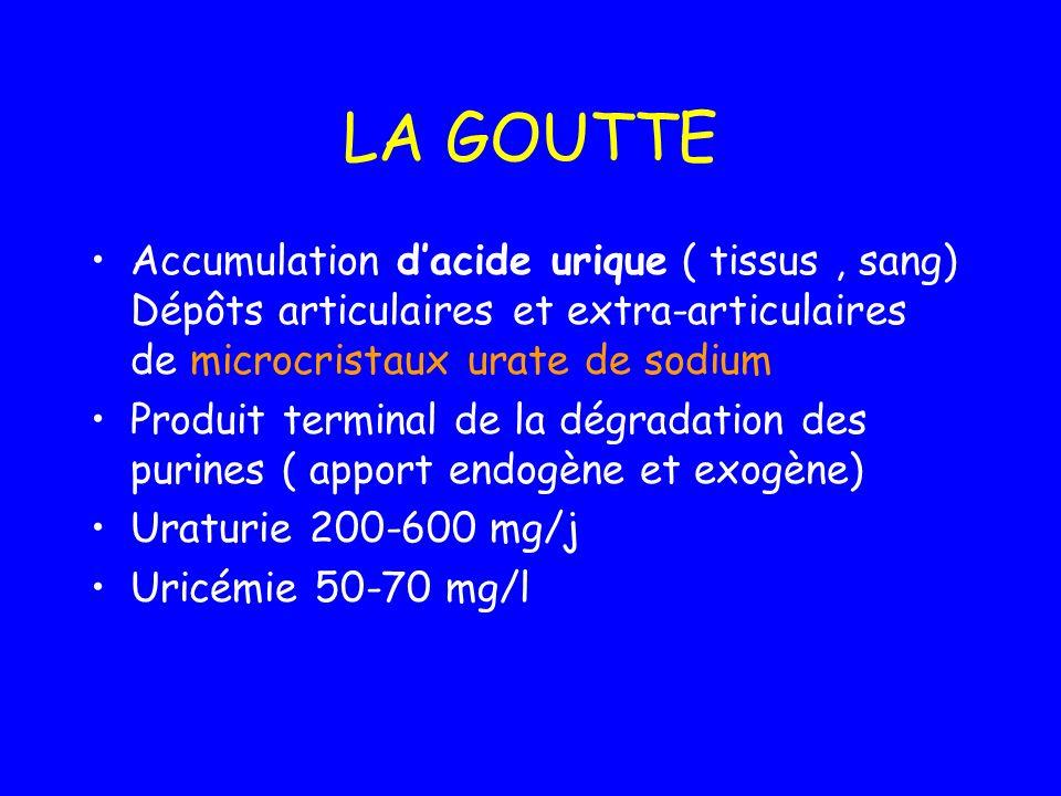 LA GOUTTE Accumulation d'acide urique ( tissus , sang) Dépôts articulaires et extra-articulaires de microcristaux urate de sodium.
