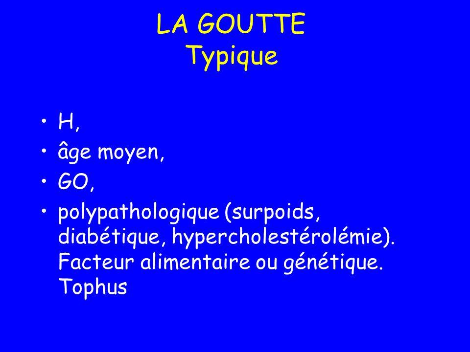 LA GOUTTE Typique H, âge moyen, GO,