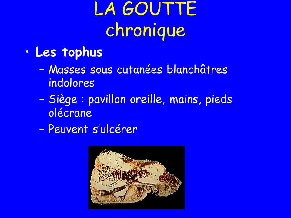 LA GOUTTE chronique Les tophus