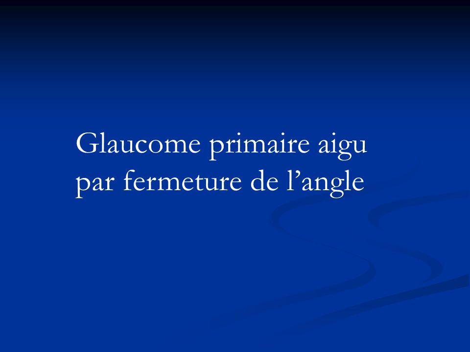 Glaucome primaire aigu