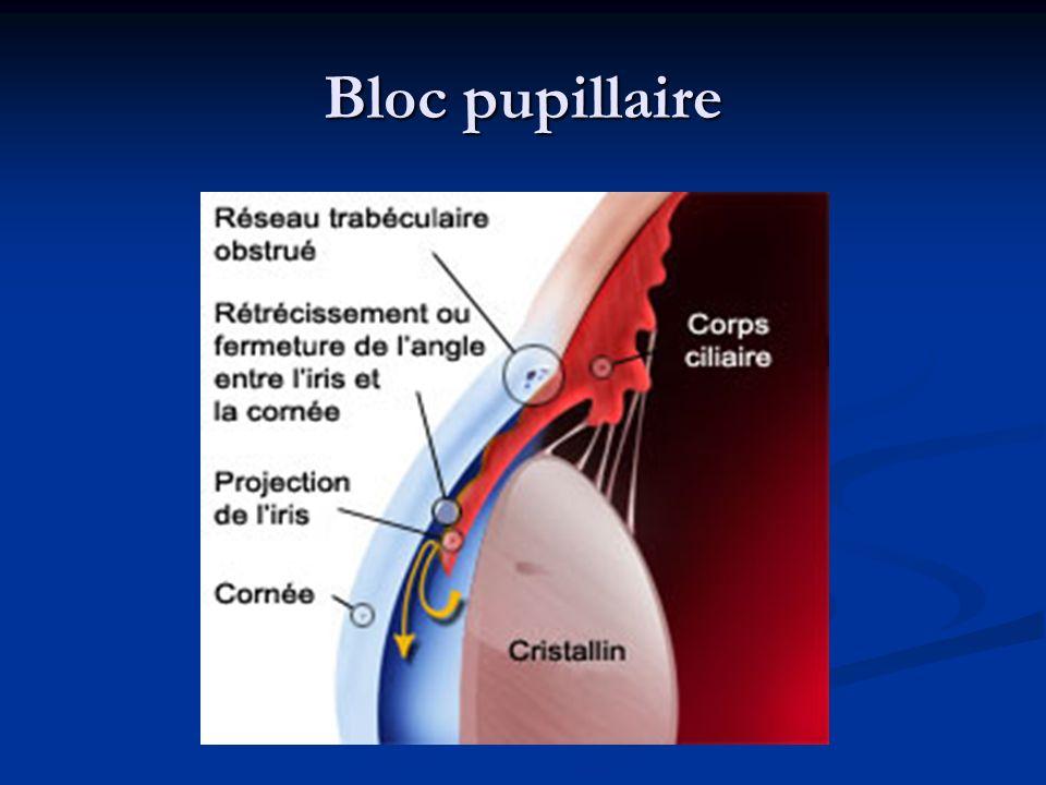 Bloc pupillaire