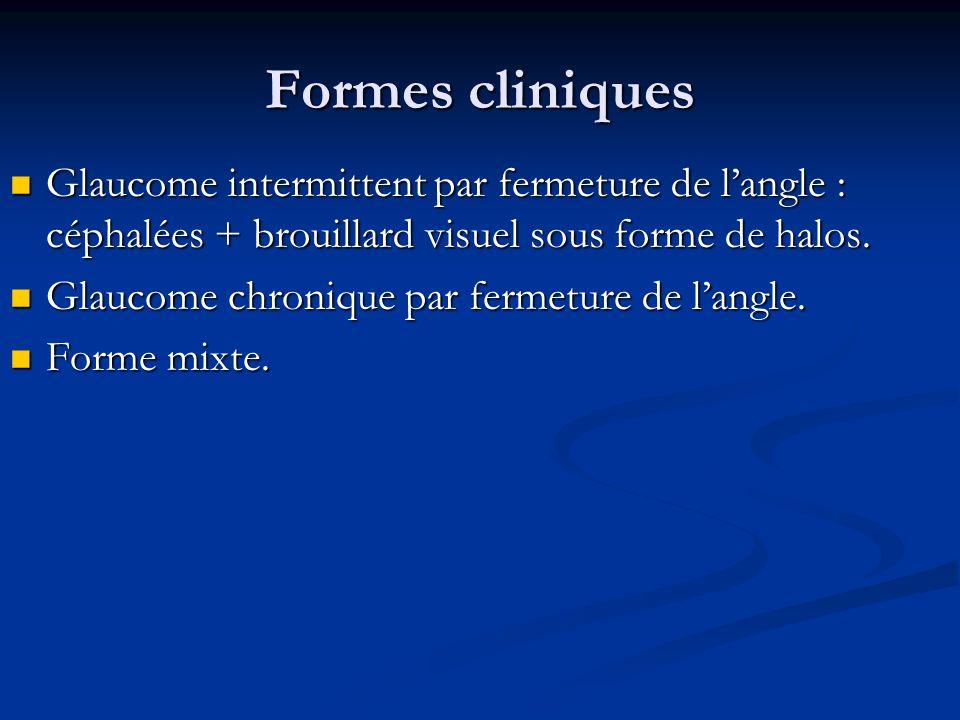 Formes cliniques Glaucome intermittent par fermeture de l'angle : céphalées + brouillard visuel sous forme de halos.