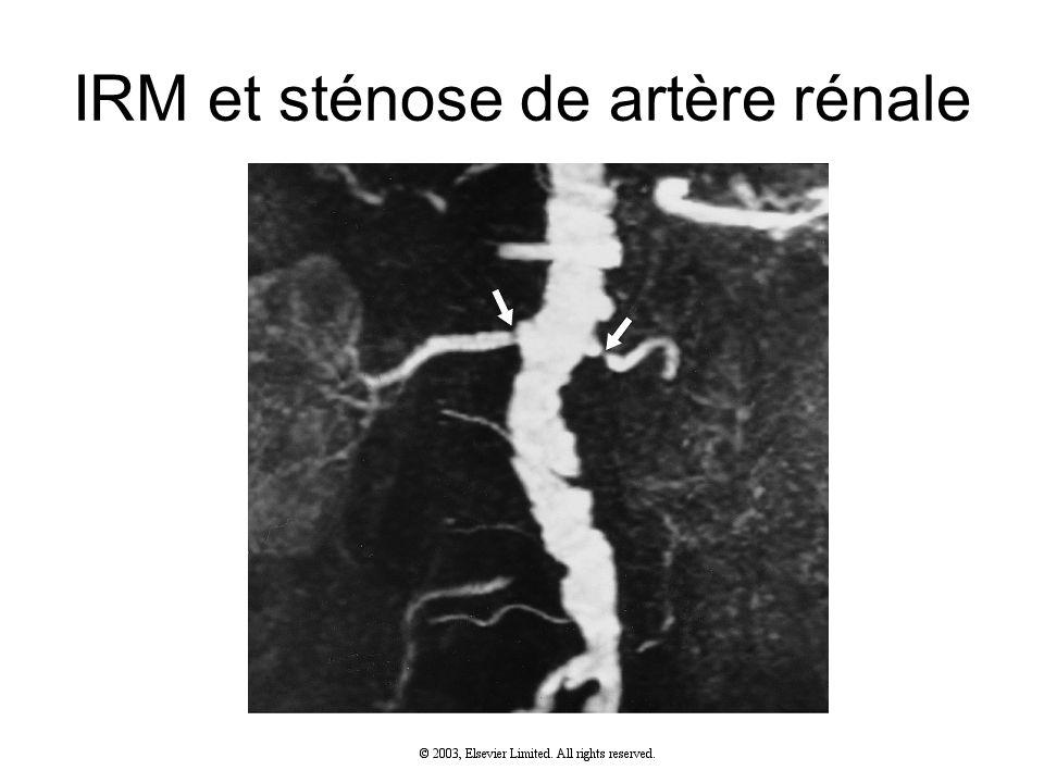 IRM et sténose de artère rénale