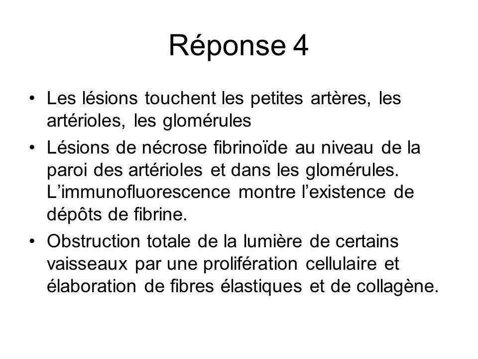 Réponse 4 Les lésions touchent les petites artères, les artérioles, les glomérules.
