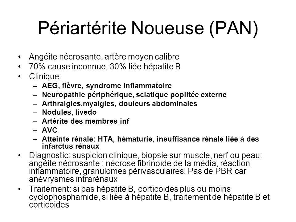 Périartérite Noueuse (PAN)