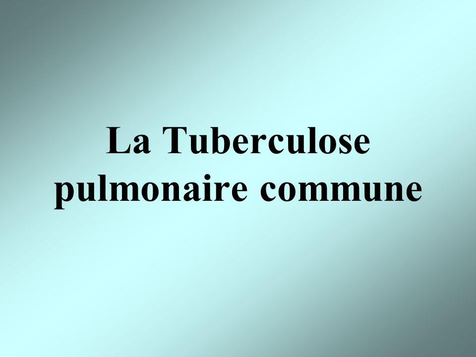 La Tuberculose pulmonaire commune