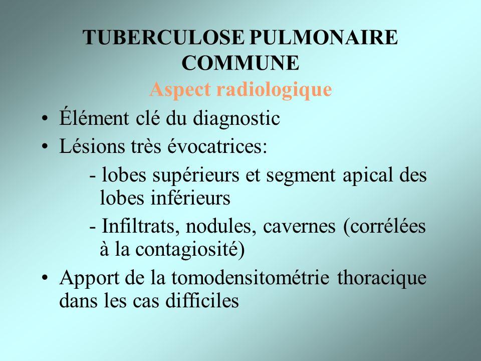 TUBERCULOSE PULMONAIRE COMMUNE Aspect radiologique