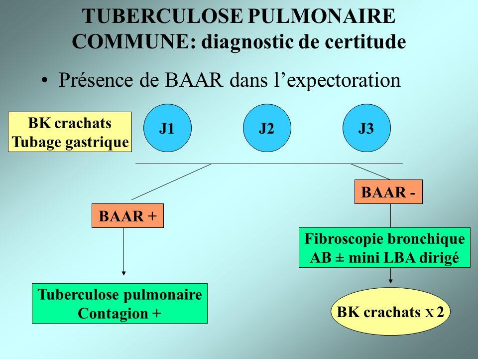 TUBERCULOSE PULMONAIRE COMMUNE: diagnostic de certitude