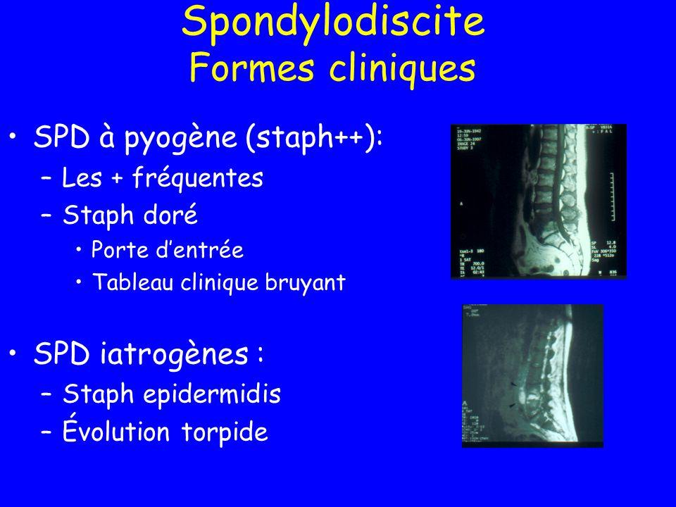 Spondylodiscite Formes cliniques