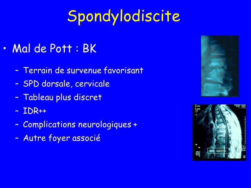 Spondylodiscite Mal de Pott : BK Terrain de survenue favorisant