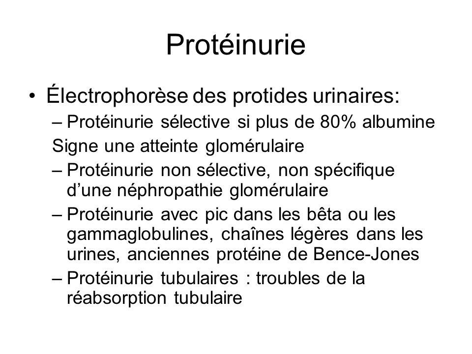 Protéinurie Électrophorèse des protides urinaires: