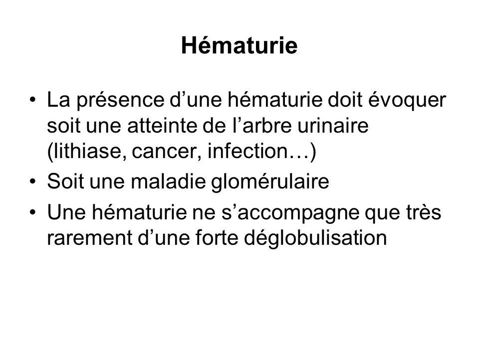 Hématurie La présence d'une hématurie doit évoquer soit une atteinte de l'arbre urinaire (lithiase, cancer, infection…)