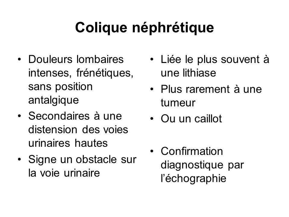 Colique néphrétique Douleurs lombaires intenses, frénétiques, sans position antalgique. Secondaires à une distension des voies urinaires hautes.