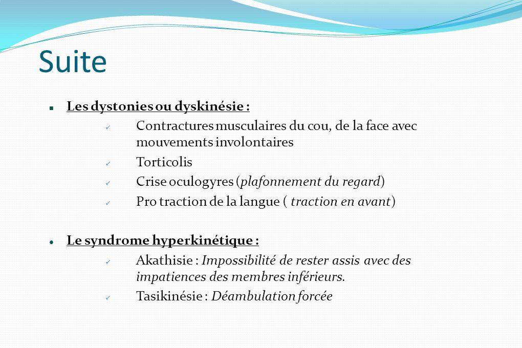 Suite Les dystonies ou dyskinésie :