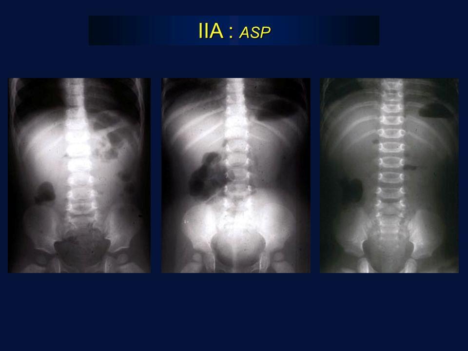 IIA : ASP