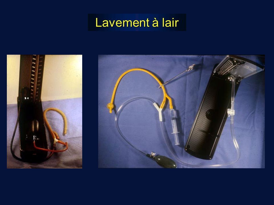 Lavement à lair