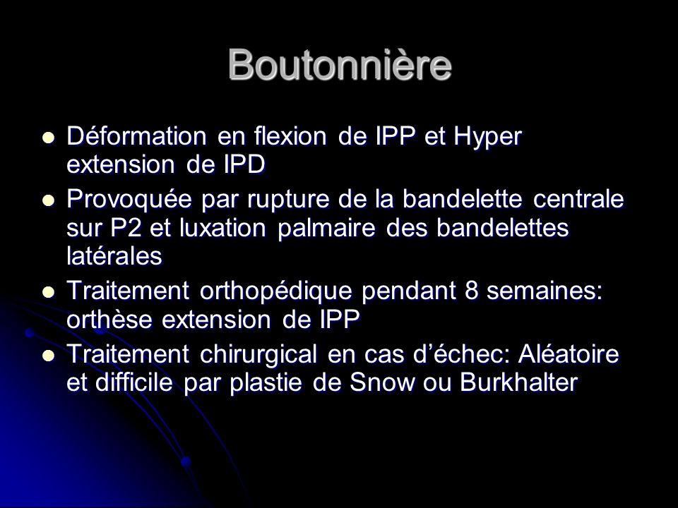 Boutonnière Déformation en flexion de IPP et Hyper extension de IPD