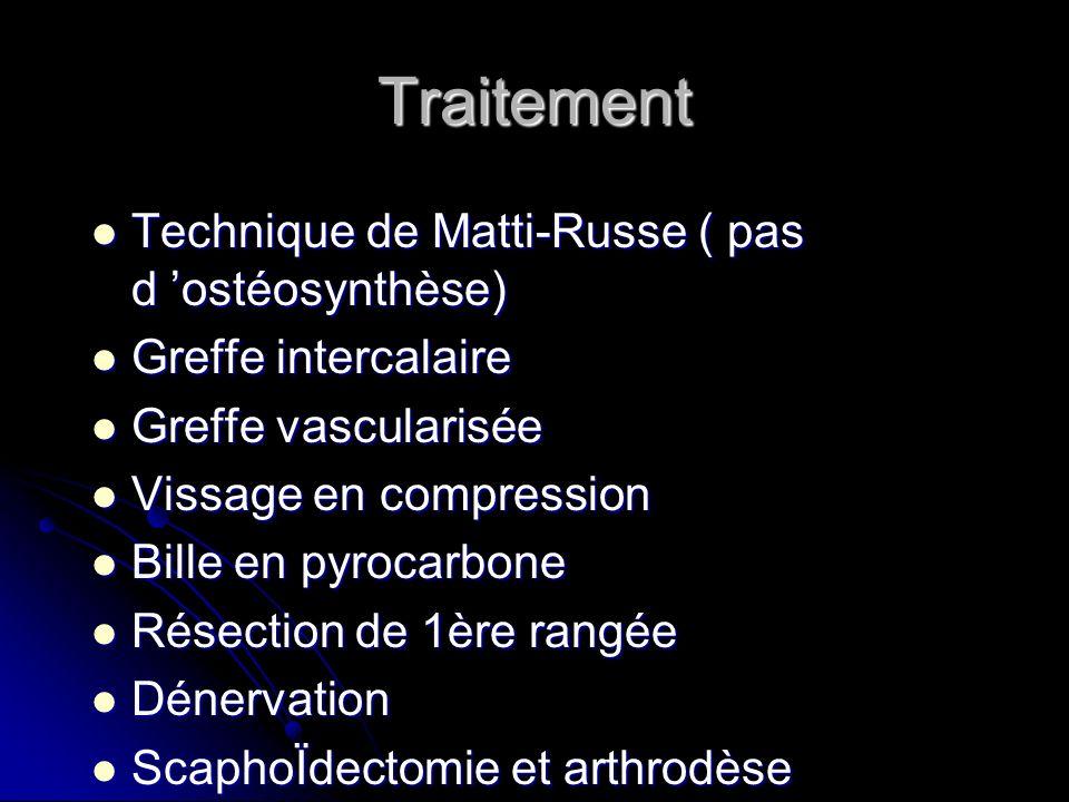 Traitement Technique de Matti-Russe ( pas d 'ostéosynthèse)