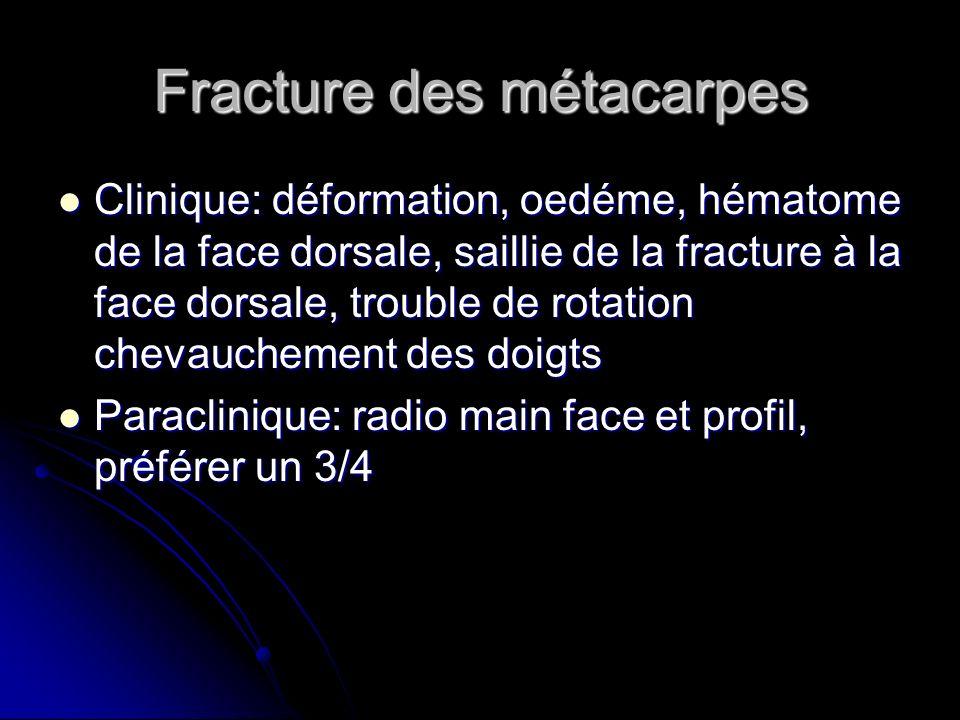 Fracture des métacarpes