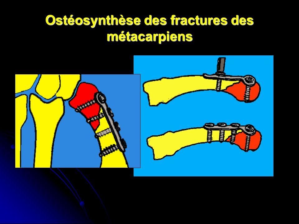 Ostéosynthèse des fractures des métacarpiens