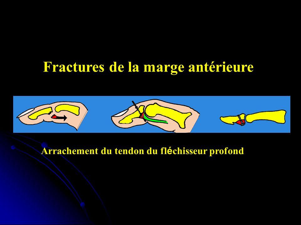 Fractures de la marge antérieure