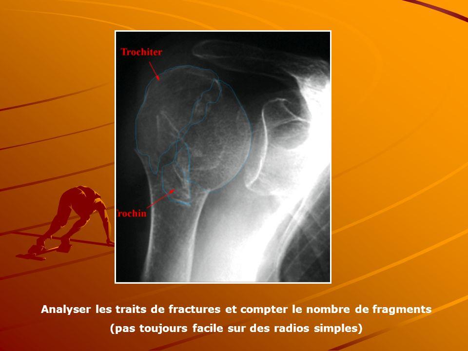 Analyser les traits de fractures et compter le nombre de fragments