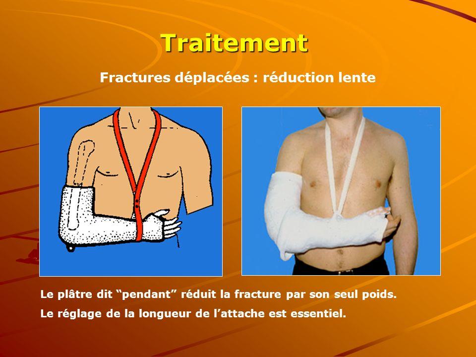 Fractures déplacées : réduction lente