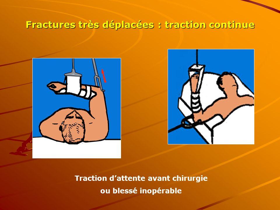 Fractures très déplacées : traction continue