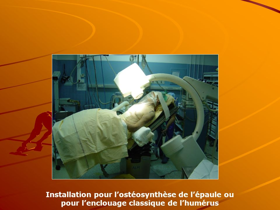 Installation pour l'ostéosynthèse de l'épaule ou pour l'enclouage classique de l'humérus