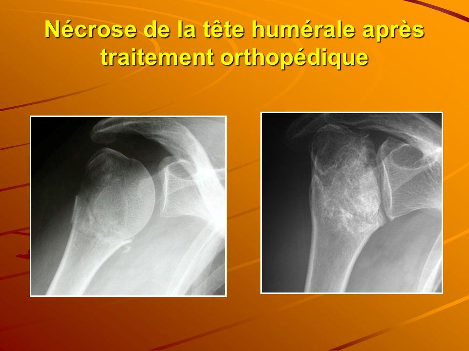 Nécrose de la tête humérale après traitement orthopédique