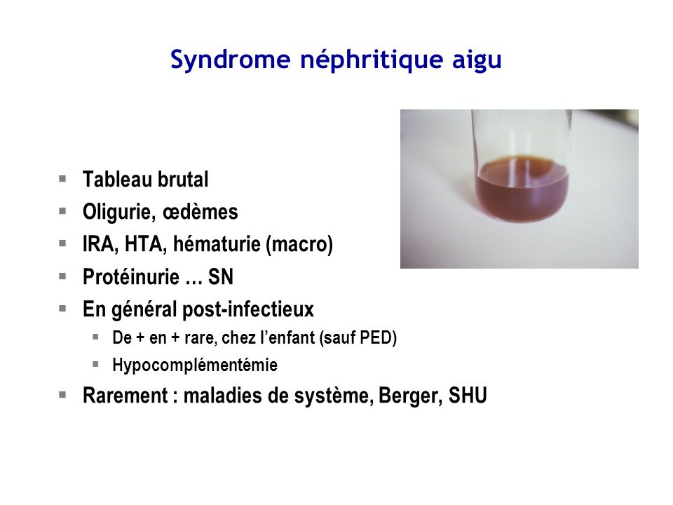 Syndrome néphritique aigu