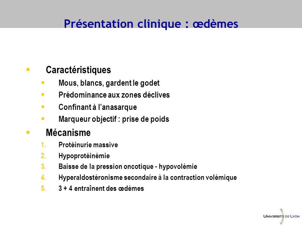 Présentation clinique : œdèmes