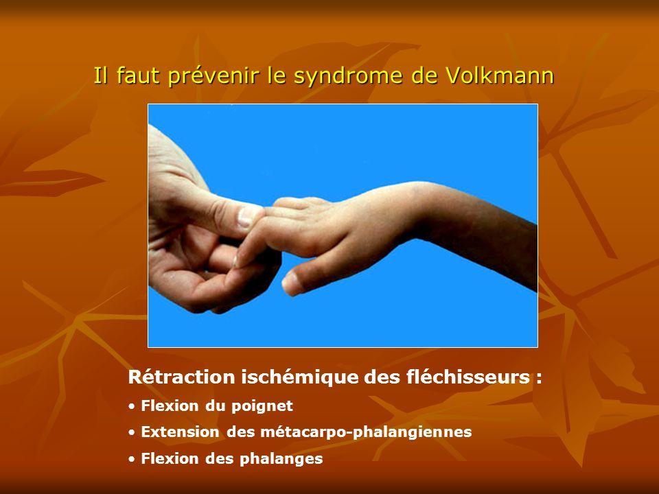 Il faut prévenir le syndrome de Volkmann