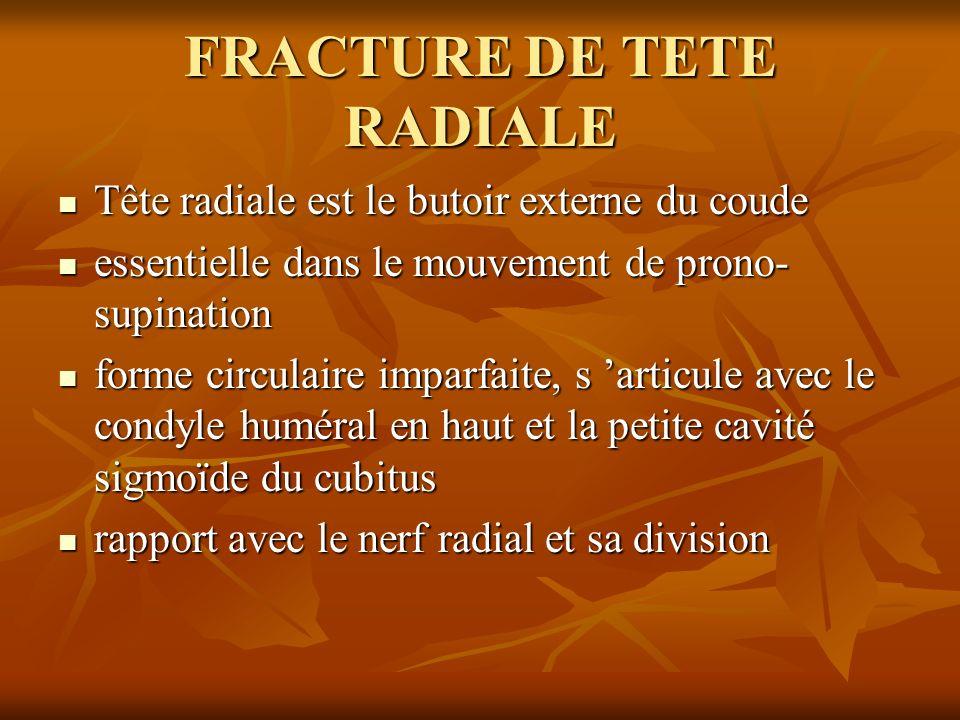 FRACTURE DE TETE RADIALE