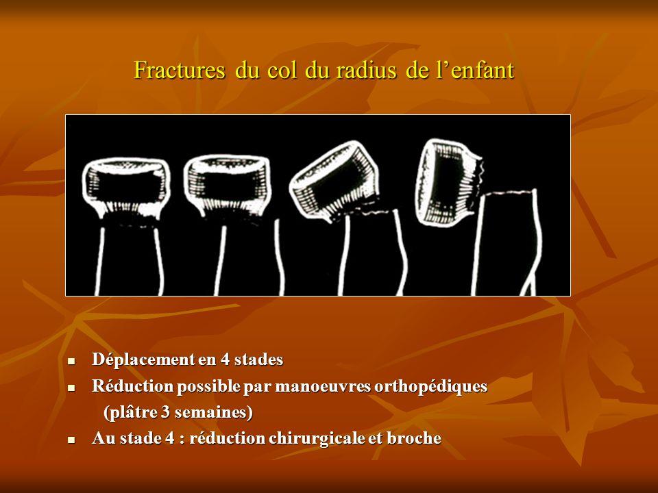 Fractures du col du radius de l'enfant