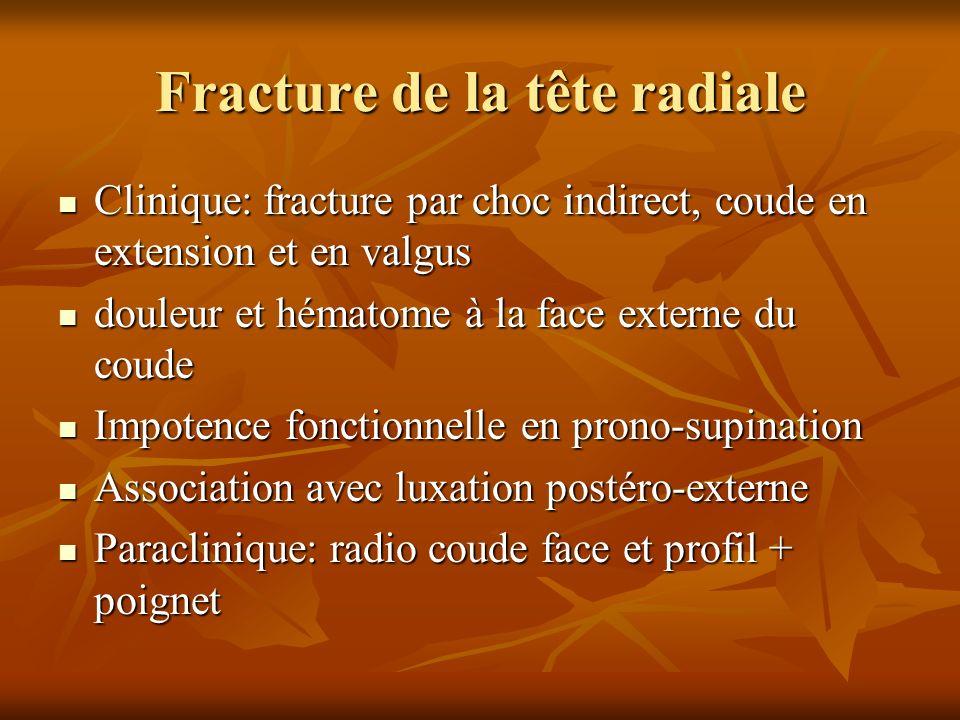 Fracture de la tête radiale